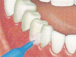 La brossette a dents