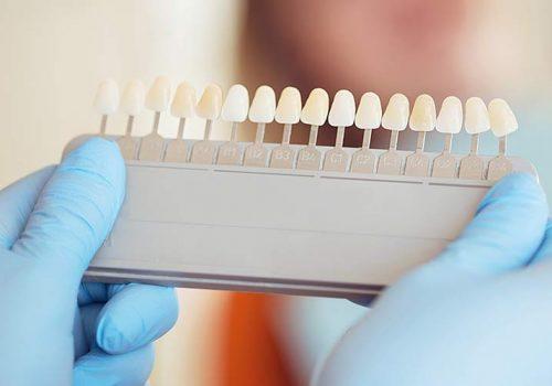 couleur-des-dents
