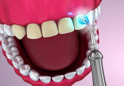 ultrason détartrage-dentaire