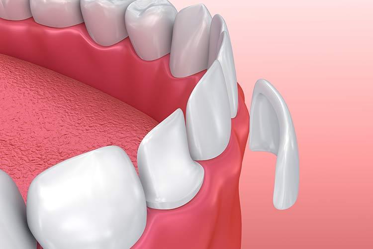 facette-dentaire-2